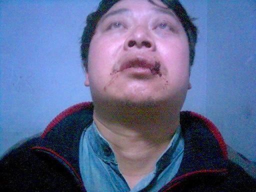 Chen Yunfei5